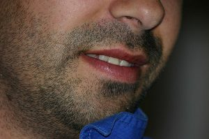 An example of thick facial hair.