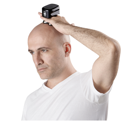 Electric head shavers have a few very compelling advantages over razor blades.