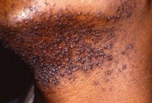 Razor bumps. Image credit: Wikipedia